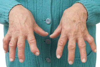 Как я вылечилась от тяжелого артрита — теперь живу без страданий и болей. Суставы больше не болят 1