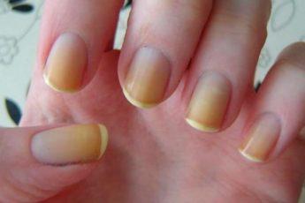 Почему желтеют ногти на руках и ногах 1