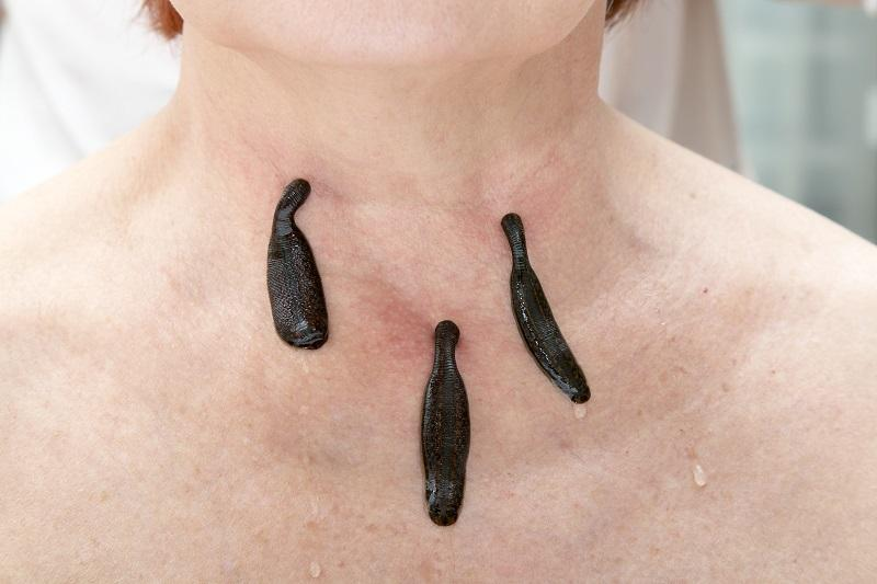 treatment-of-people-of-medical-leeches