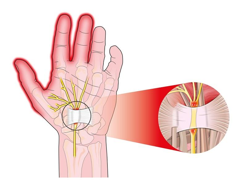transverse-carpal-ligament
